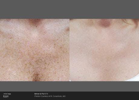 Skin Rejuvenation Gallery - Patient 41897318 - Image 1