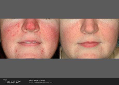 Skin Rejuvenation Gallery - Patient 41897319 - Image 1