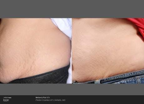 Skin Rejuvenation Gallery - Patient 41897320 - Image 1