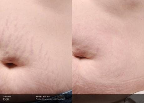 Skin Rejuvenation Gallery - Patient 41897323 - Image 1