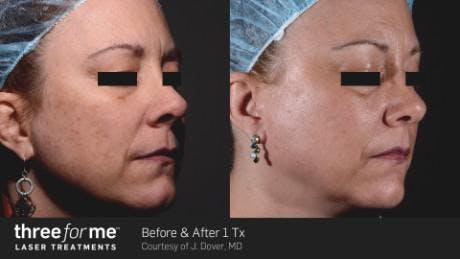 Skin Rejuvenation Gallery - Patient 41897324 - Image 1
