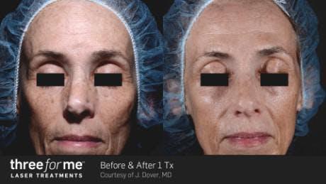 Skin Rejuvenation Gallery - Patient 41897325 - Image 1