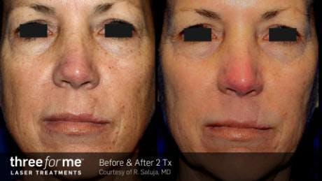 Skin Rejuvenation Gallery - Patient 41897326 - Image 1