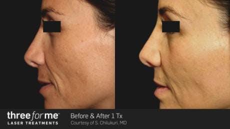 Skin Rejuvenation Gallery - Patient 41897327 - Image 1