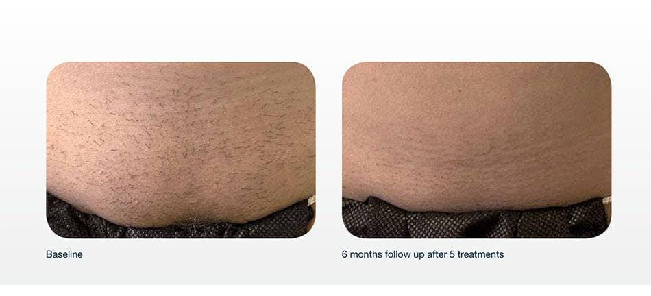 Hair Removal Gallery - Patient 41897330 - Image 1