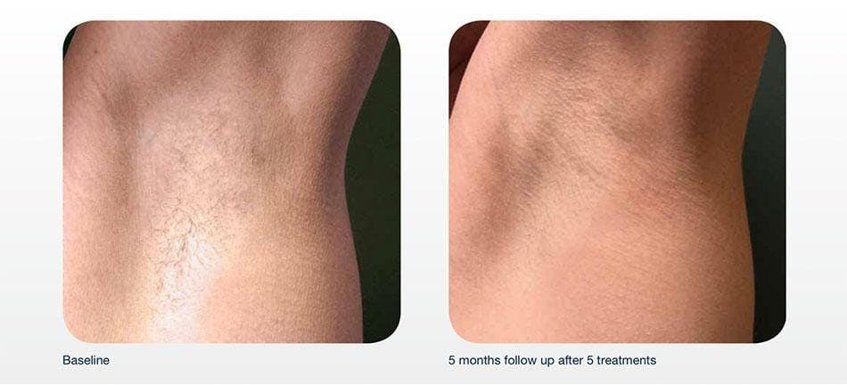 Hair Removal Gallery - Patient 41897331 - Image 1