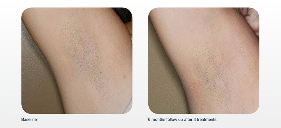 Hair Removal Gallery - Patient 41897332 - Image 1