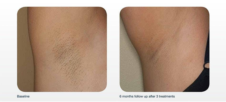 Hair Removal Gallery - Patient 41897333 - Image 1