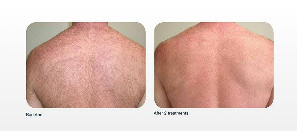 Hair Removal Gallery - Patient 41897334 - Image 1