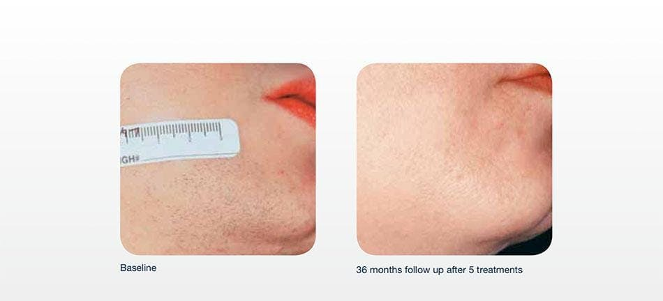 Hair Removal Gallery - Patient 41897335 - Image 1