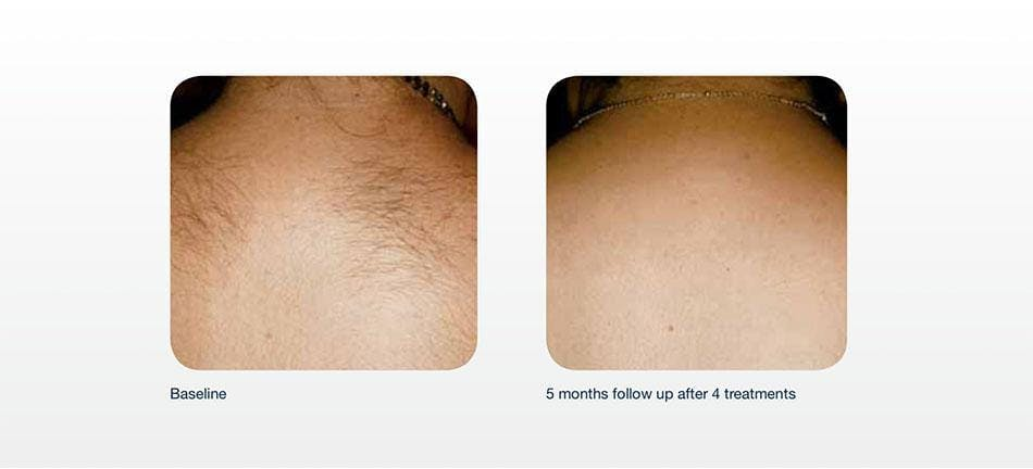 Hair Removal Gallery - Patient 41897336 - Image 1