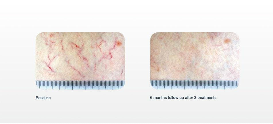 Hair Removal Gallery - Patient 41897337 - Image 1
