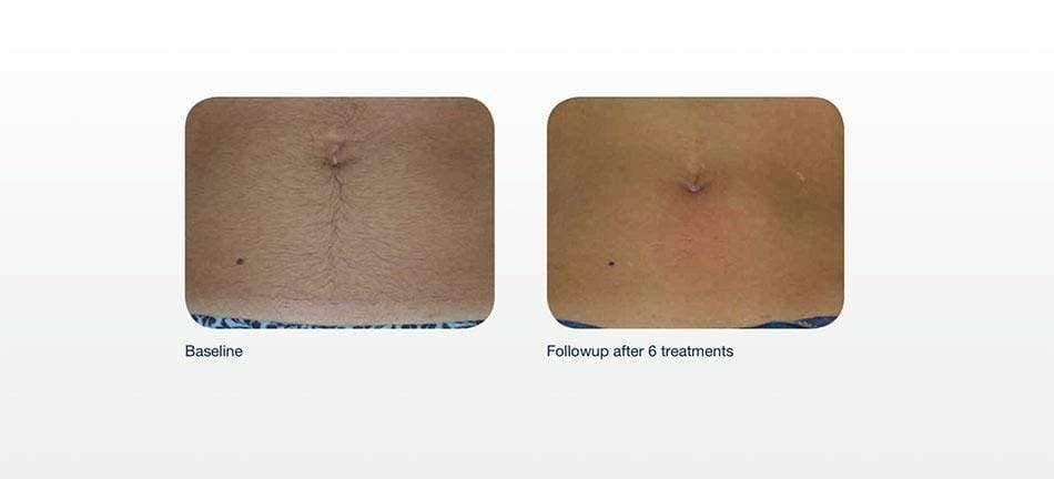 Hair Removal Gallery - Patient 41897340 - Image 1