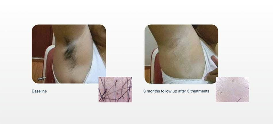 Hair Removal Gallery - Patient 41897341 - Image 1