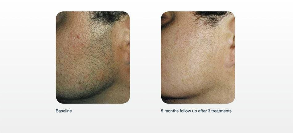 Hair Removal Gallery - Patient 41897342 - Image 1