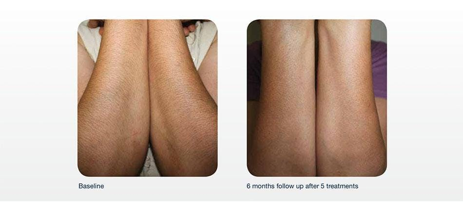 Hair Removal Gallery - Patient 41897343 - Image 1