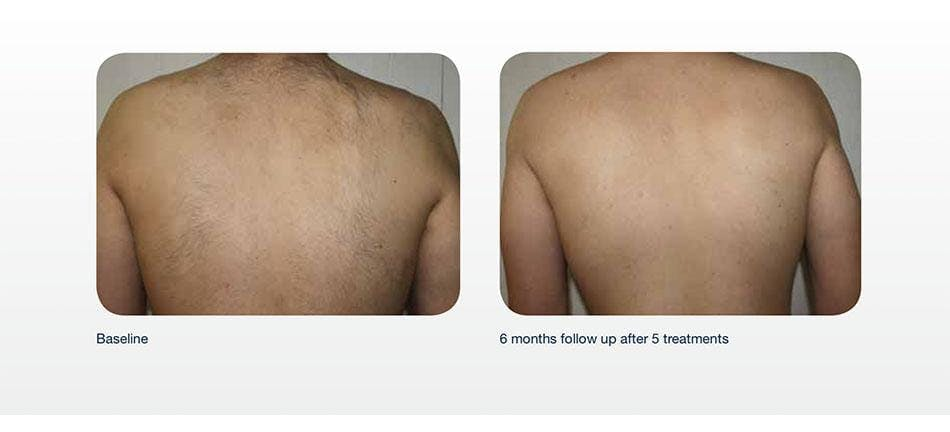 Hair Removal Gallery - Patient 41897344 - Image 1