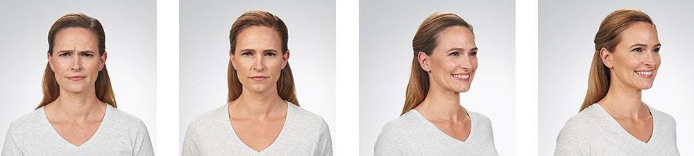 Botox/Xeomin Gallery - Patient 41897362 - Image 1