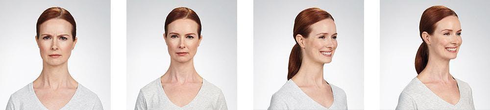 Botox/Xeomin Gallery - Patient 41897363 - Image 1