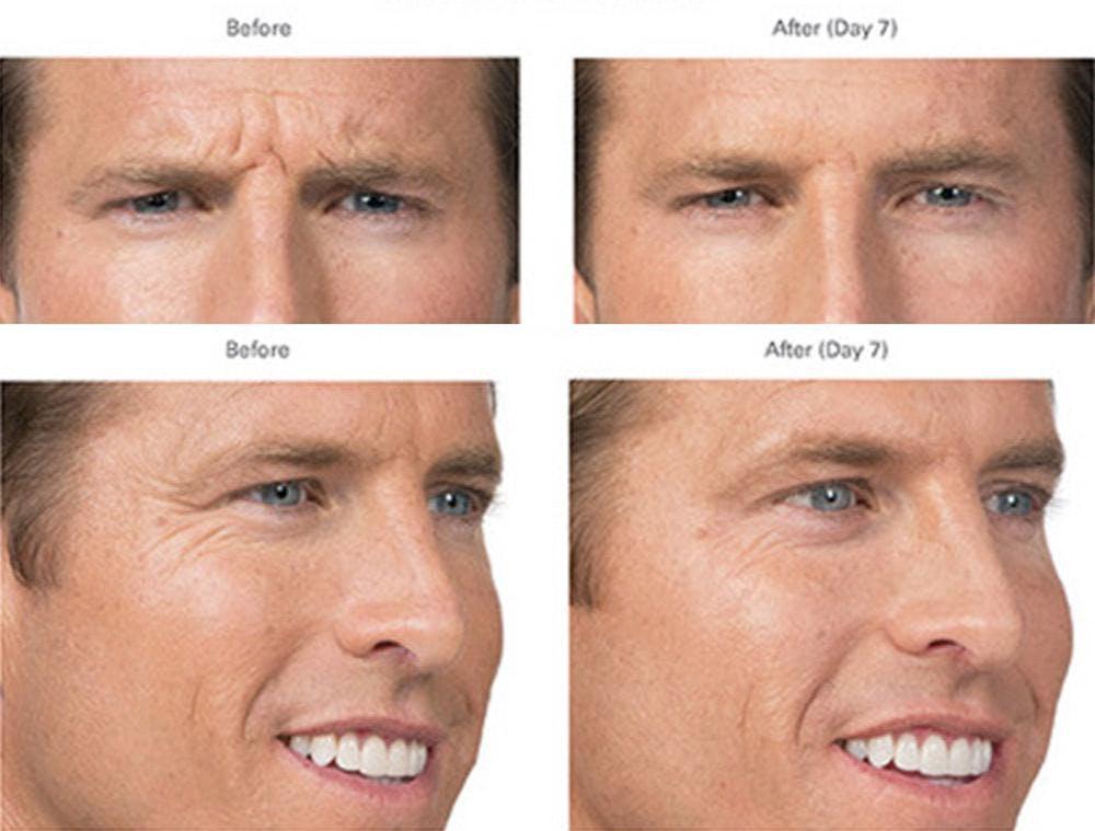 Botox/Xeomin Gallery - Patient 41897365 - Image 1