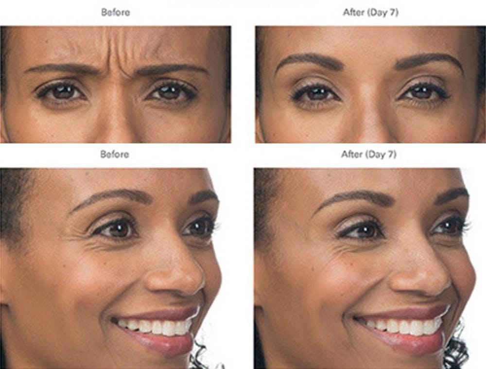 Botox/Xeomin Gallery - Patient 41897366 - Image 1