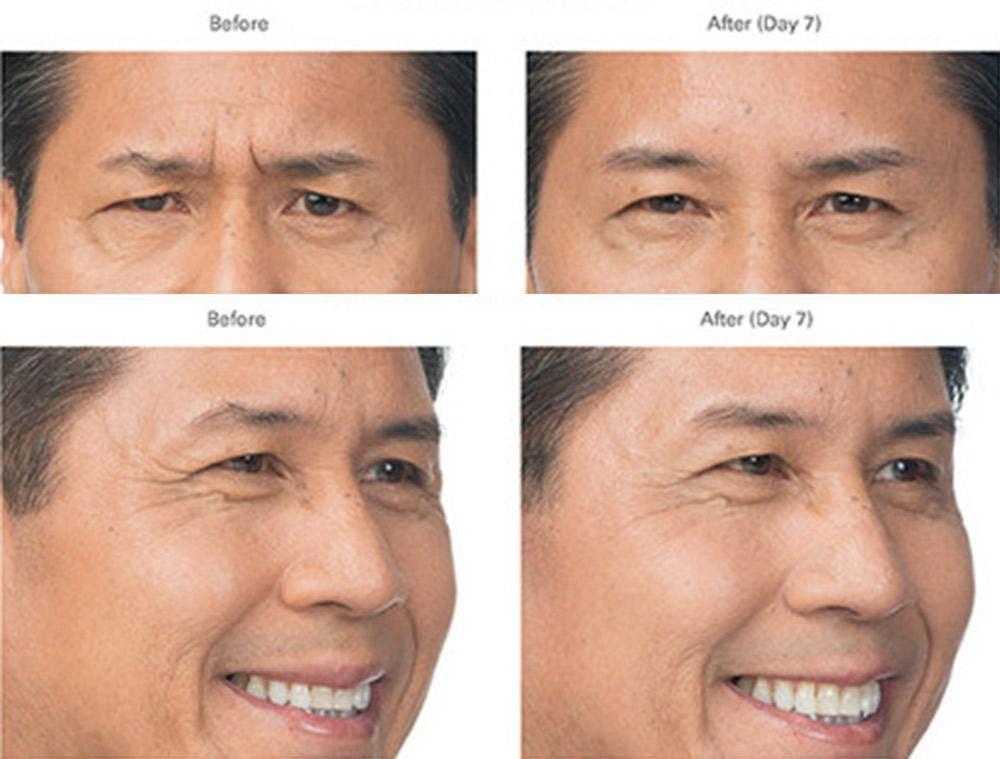 Botox/Xeomin Gallery - Patient 41897367 - Image 1