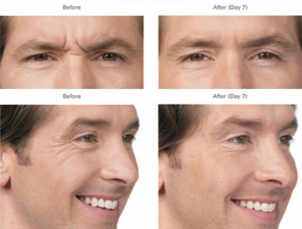Botox/Xeomin Gallery - Patient 41897368 - Image 1