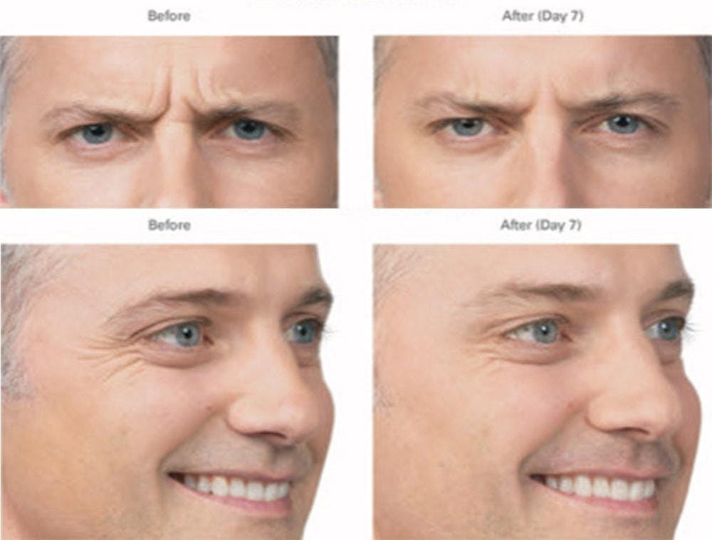 Botox/Xeomin Gallery - Patient 41897369 - Image 1