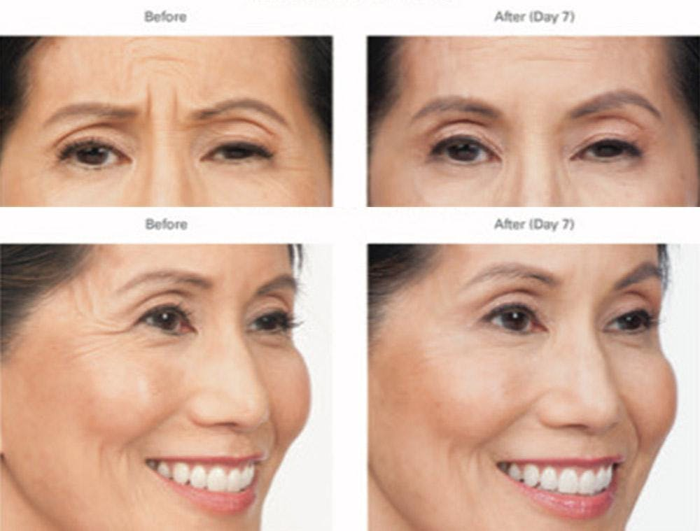 Botox/Xeomin Gallery - Patient 41897370 - Image 1