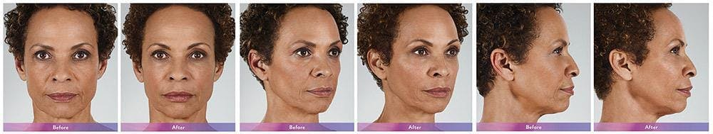 Fillers Gallery - Patient 41897375 - Image 1