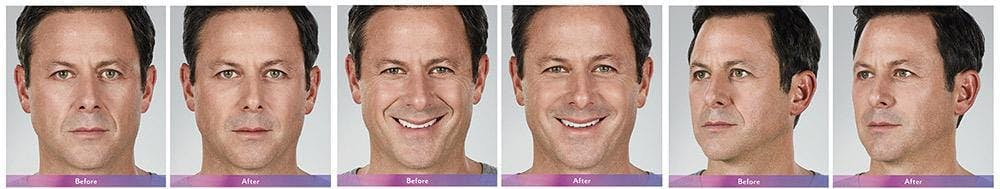 Fillers Gallery - Patient 41897376 - Image 1