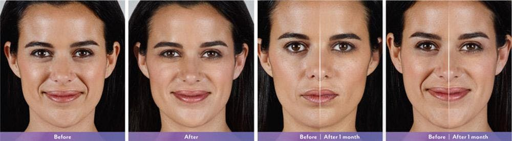 Fillers Gallery - Patient 41897377 - Image 1