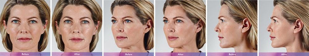 Fillers Gallery - Patient 41897378 - Image 1