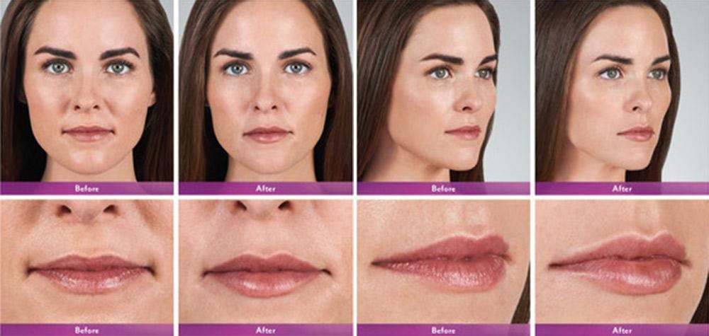 Fillers Gallery - Patient 41897379 - Image 1