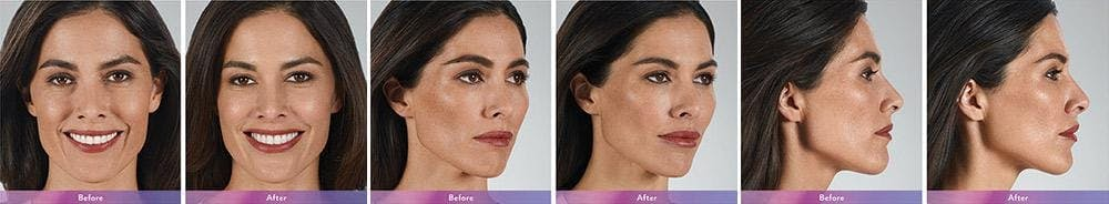 Fillers Gallery - Patient 41897380 - Image 1