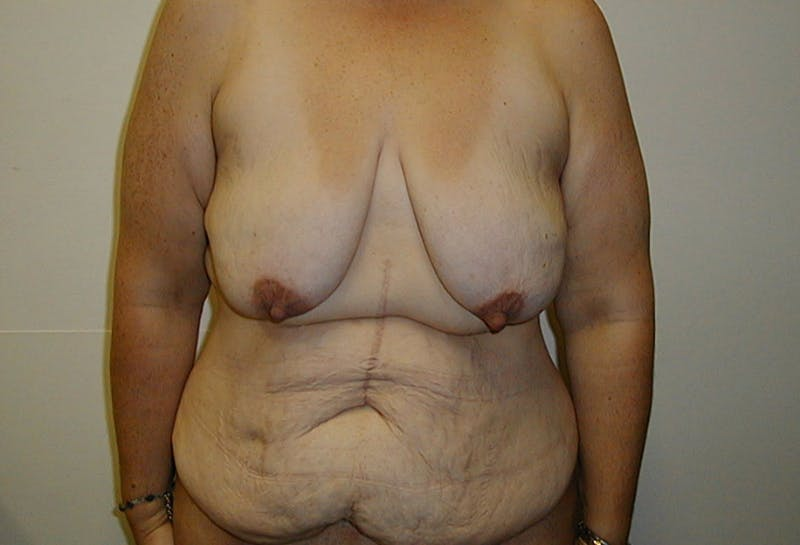 Body Lift Gallery - Patient 42751415 - Image 1