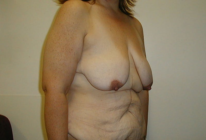Body Lift Gallery - Patient 42751415 - Image 3