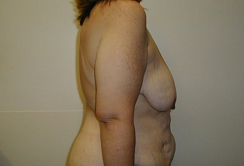 Body Lift Gallery - Patient 42751415 - Image 5