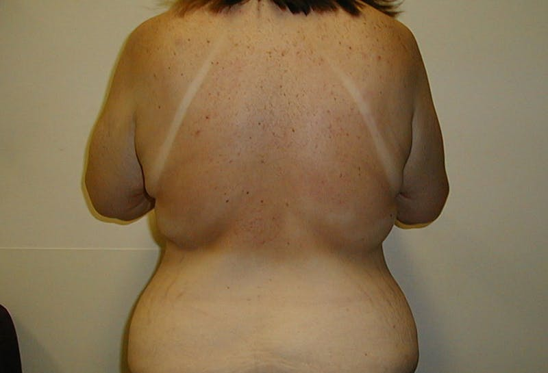 Body Lift Gallery - Patient 42751415 - Image 7
