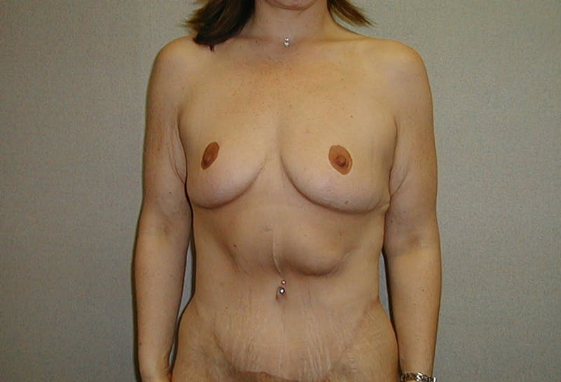 Body Lift Gallery - Patient 42751415 - Image 2