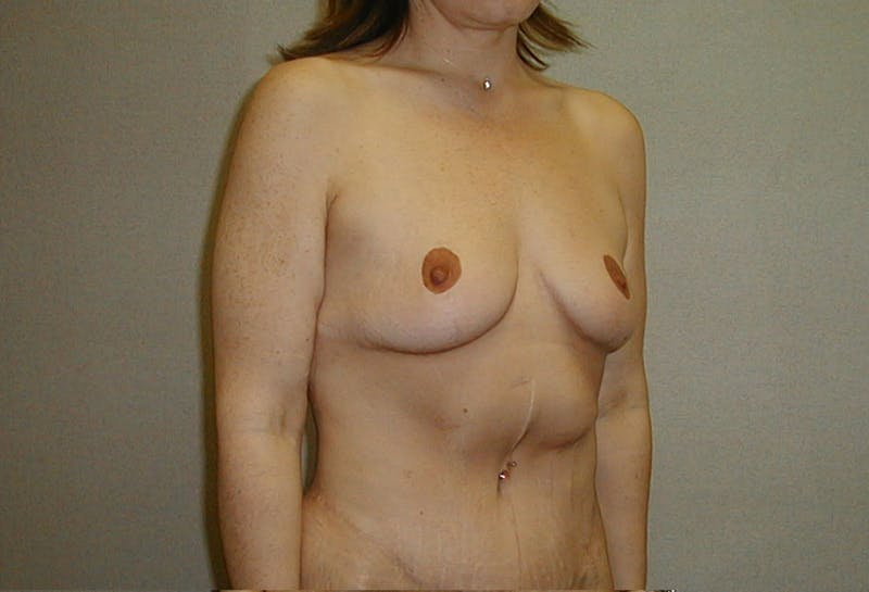 Body Lift Gallery - Patient 42751415 - Image 4