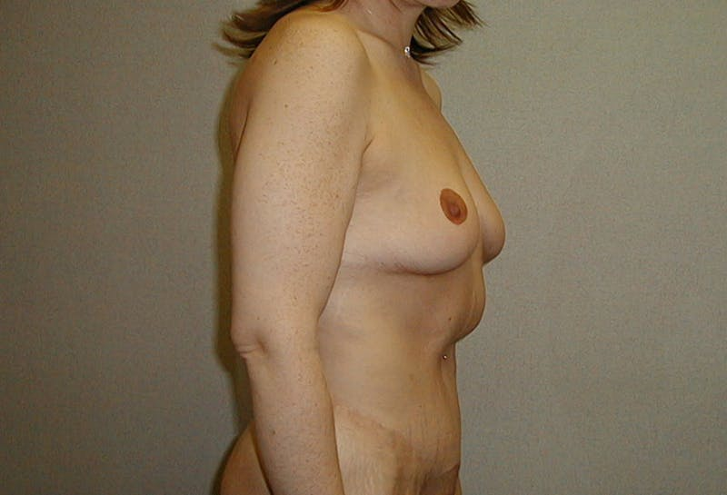 Body Lift Gallery - Patient 42751415 - Image 6