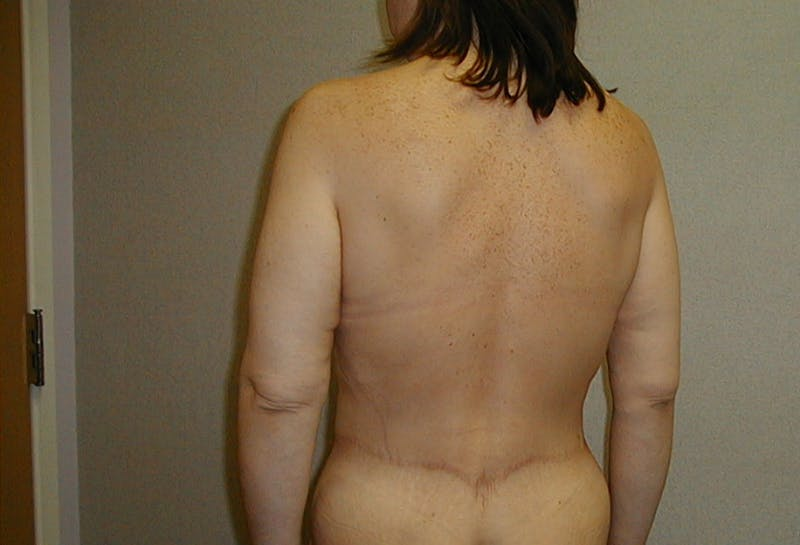 Body Lift Gallery - Patient 42751415 - Image 8