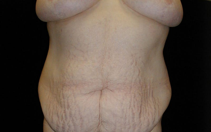 Body Lift Gallery - Patient 42751416 - Image 1