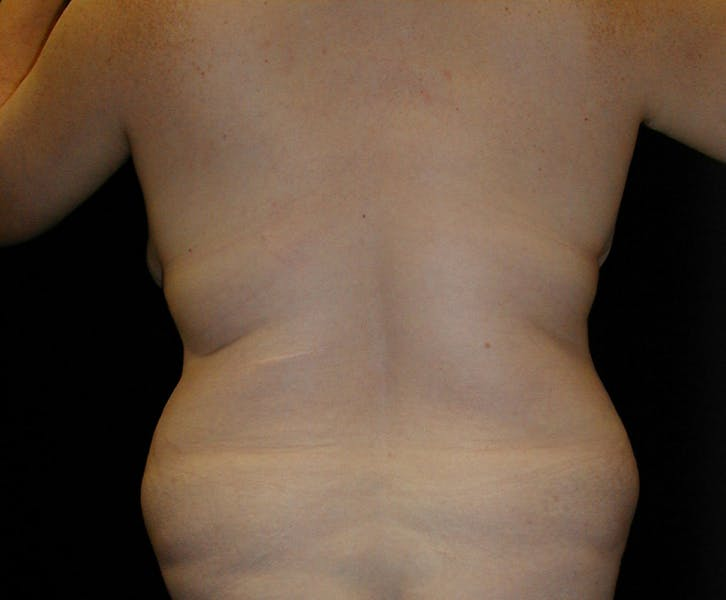 Body Lift Gallery - Patient 42751416 - Image 7