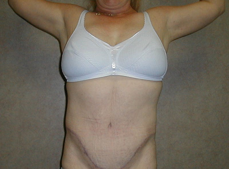Body Lift Gallery - Patient 42751416 - Image 2