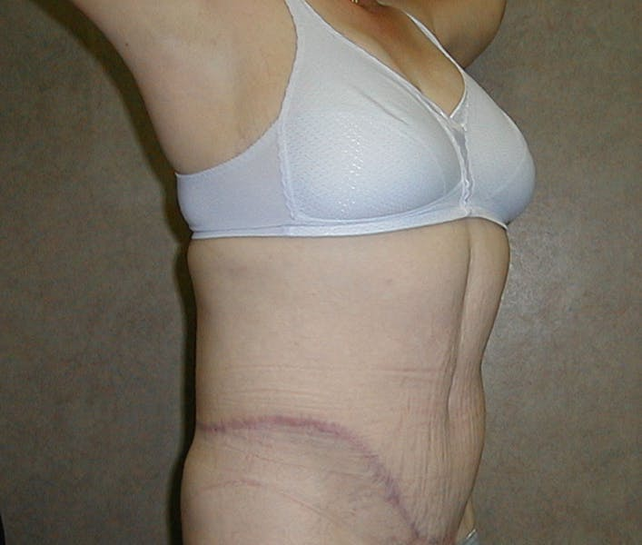 Body Lift Gallery - Patient 42751416 - Image 4