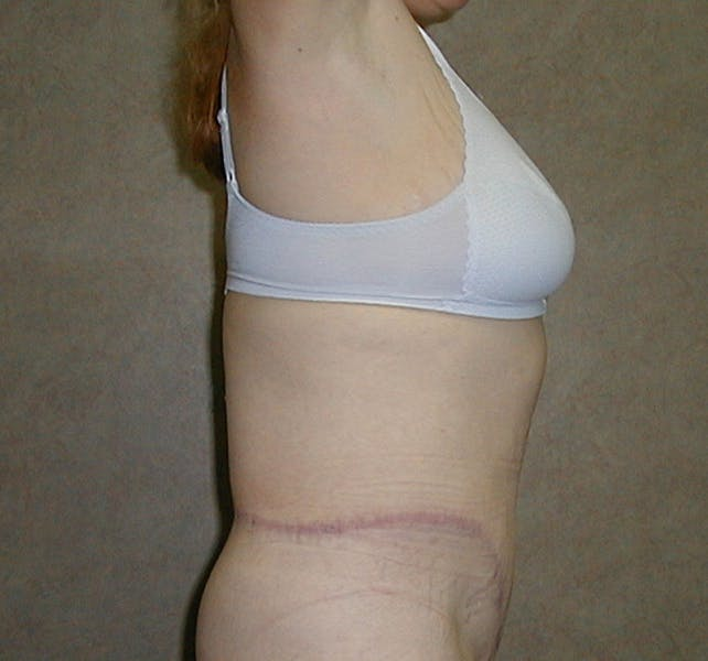 Body Lift Gallery - Patient 42751416 - Image 6