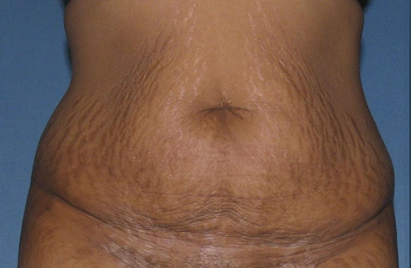 Body Lift Gallery - Patient 42751418 - Image 1