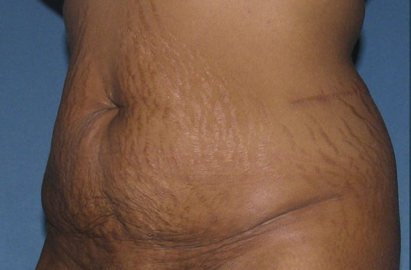 Body Lift Gallery - Patient 42751418 - Image 3